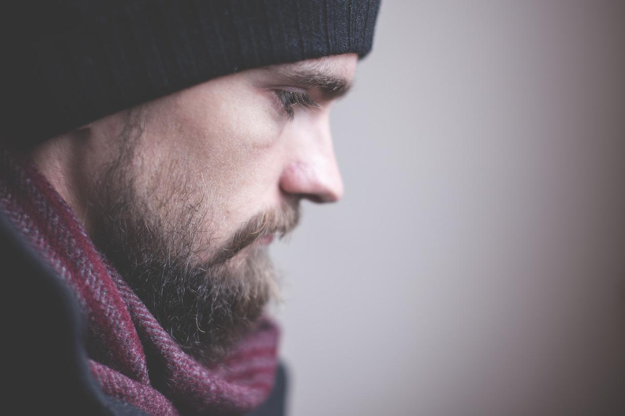 ストレスから抜毛症に◆もみあげを抜きすぎてハゲてしまった26歳くせ毛男性がツーブロックヘアで乗り越えた体験談