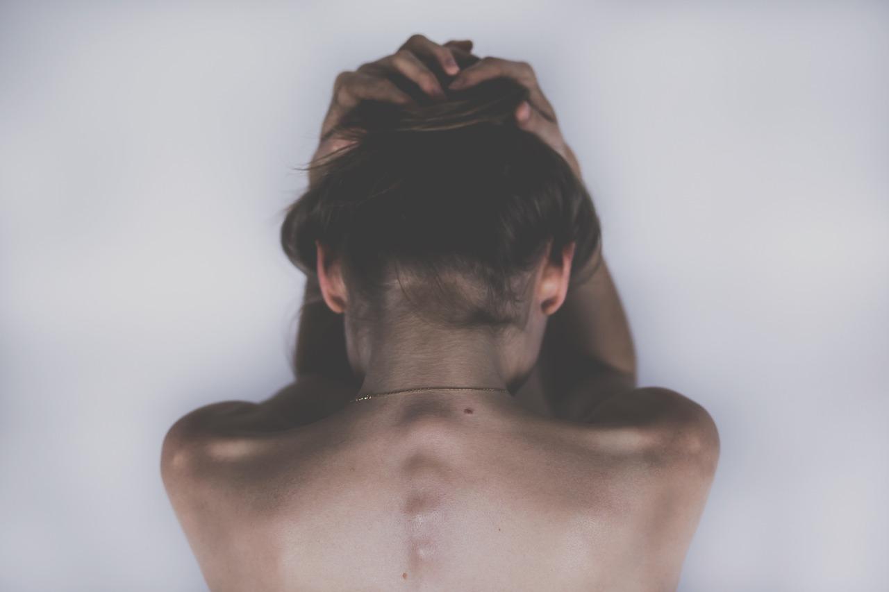 ひどい背中ニキビをエステと脱毛で改善した20代女性の体験談