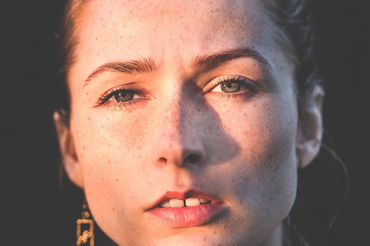 20代で顔がシミだらけになった女性がとった改善対策と方法(体験談)