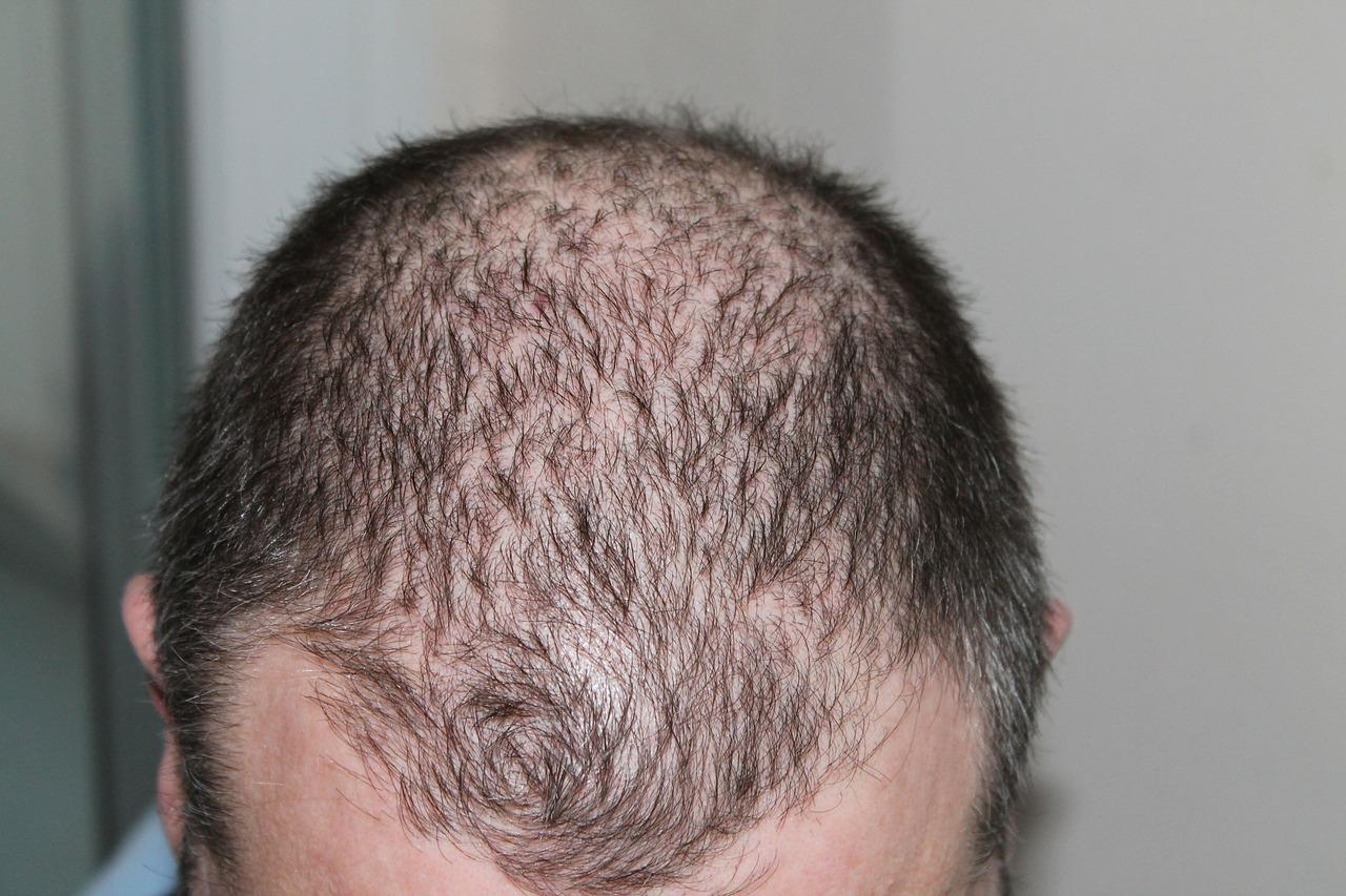 薄毛・育毛ケアは毎日のサプリで生え際の後退を改善(29歳男性の体験談)