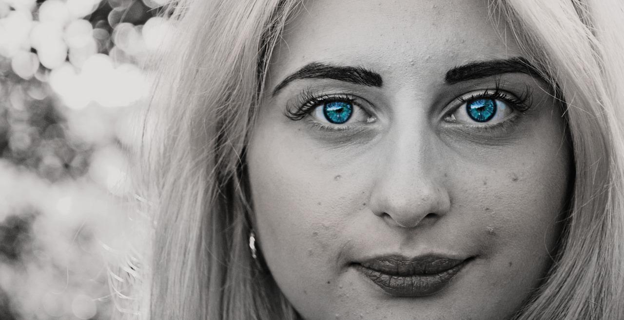 頬や顔全体の真っ赤なひどいニキビに悩まされ、食事を変えて1ヶ月で改善した20代女性の体験談